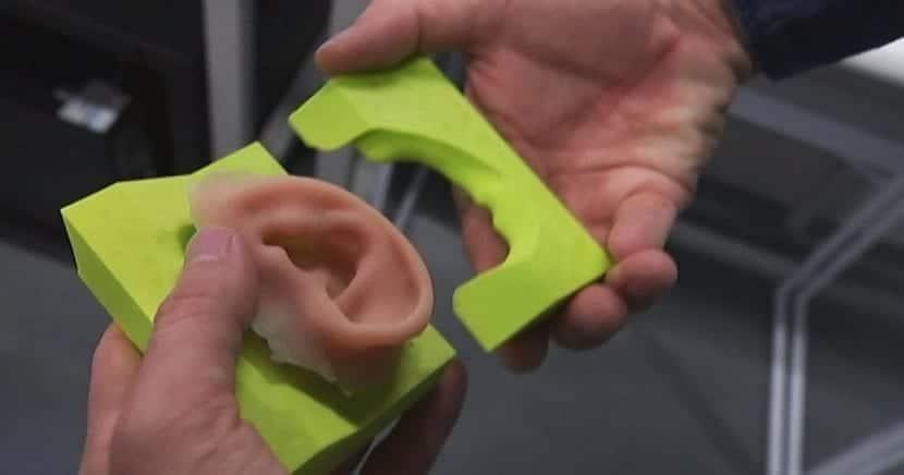 implantes de oreja