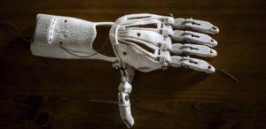 prótesis biónica